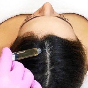 Плазмотерапия – это очень полезная косметологическая процедура, проводимая при помощи инъекций